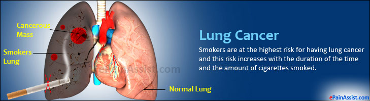 Lung Cancer or Carcinoma of the Lung