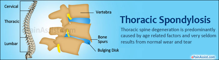 Thoracic Spondylosis
