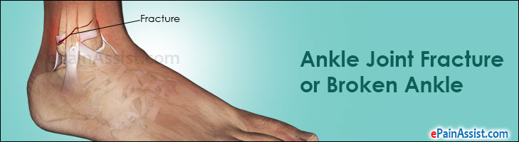 Ankle Joint Fracture or Broken Ankle