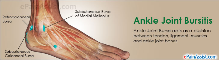 Ankle Joint Bursitis