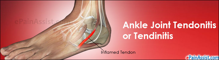 Ankle Joint Tendonitis or Tendinitis