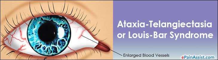 Ataxia-Telangiectasia or Louis-Bar Syndrome