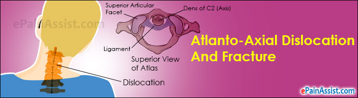 Atlanto-Axial Dislocation And Fracture