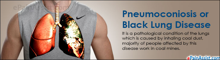 Pneumoconiosis or Black Lung Disease