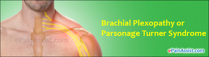 Brachial Plexopathy or Parsonage Turner Syndrome