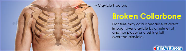 Broken Collarbone or Clavicle Fracture