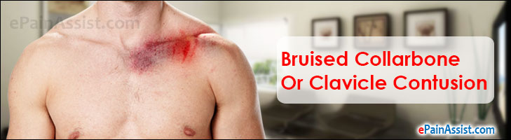 Bruised Collarbone Or Clavicle Contusion