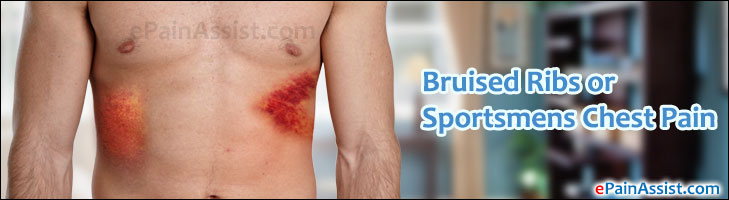 Bruised Ribs or Sportsmens Chest Pain