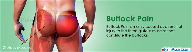 what can cause buttock pain and how can it treated rh epainassist com Pressure Areas On Buttocks Si Joint Pain Symptoms Buttocks
