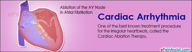 Cardiac Arrhythmia And The Ablation Therapy: Treatment Without Major