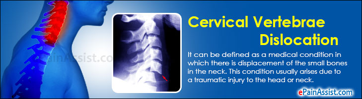 Cervical Vertebrae Dislocation
