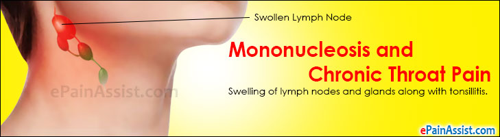 Mononucleosis and Chronic Throat Pain