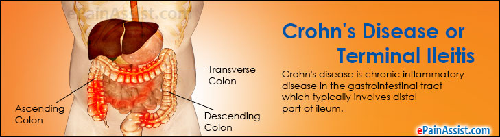 crohns disease causes symptoms and treatments The symptoms vary from person to person, and a treatment that is effective in one   crohn's disease is a chronic condition that may cause inflammation in any.