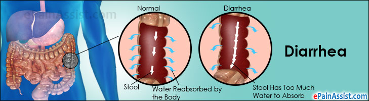Are Causes for prolonged diarrhea in adults think