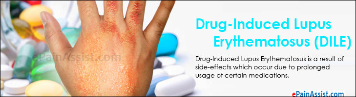 Drug-induced lupus erythematosus - Wikipedia