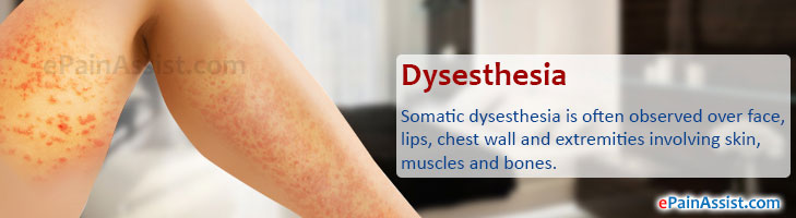 Q and A On Dysesthesia