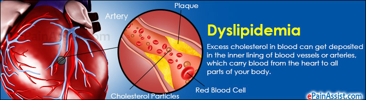 Dyslipidemia Treatment Lifestyle Modification How It