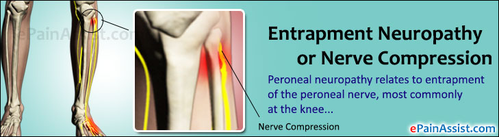 Entrapment Neuropathy or Nerve Compression Syndrome