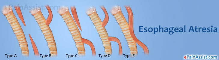 Esophageal Atresia: Treatment, Symptoms, Types, Diagnosis