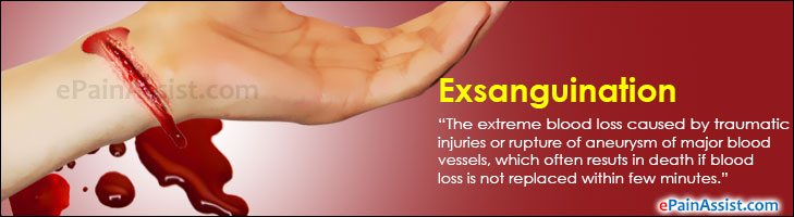 Exsanguination: Life Threatening Severe Blood Loss