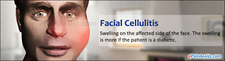 Does not Treatment of facial cellulitis
