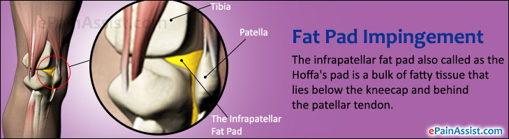 Fat Pad Impingement or Hoffa's Pad Impingement