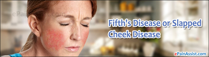 Fifth's Disease or Slapped Cheek Disease or Parvovirus Infection