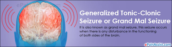 Generalized Tonic-Clonic Seizure or Grand Mal Seizure