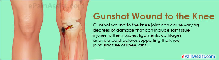 Gunshot Wound to the Knee