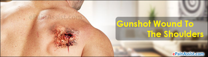 Gunshot Wound To The Shoulders