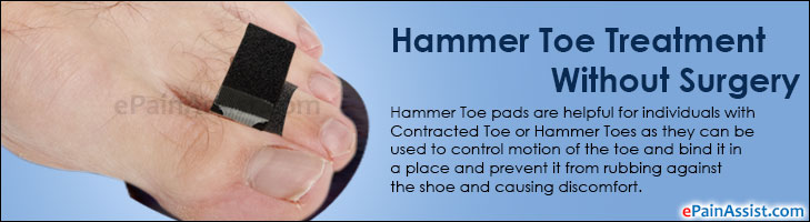 Hammer Toe Treatment Without Surgery