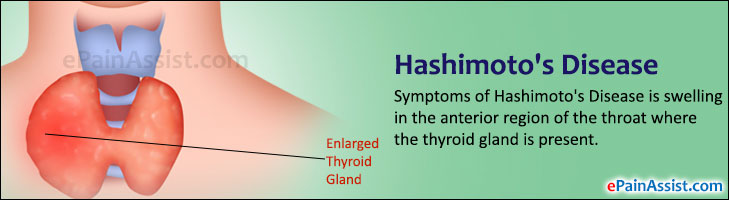 Hashimoto S Disease Or Hashimoto S Thyroiditis Causes Risk Factors