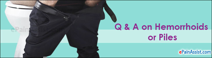 Q and A on Hemorrhoids or Piles