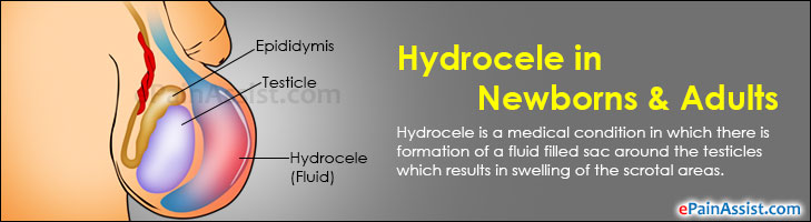 Hydrocele In Newborns & Adults|Treatment|Prognosis|Causes ...
