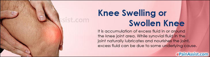 Knee Swelling or Swollen Knee