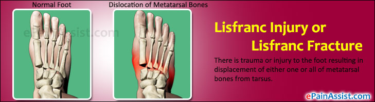Lisfranc Injury or Lisfranc Fracture (Dislocation)