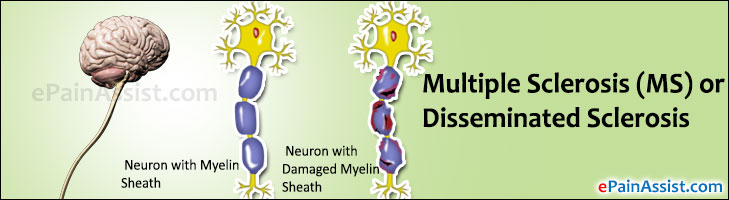 Multiple Sclerosis (MS) or Disseminated Sclerosis