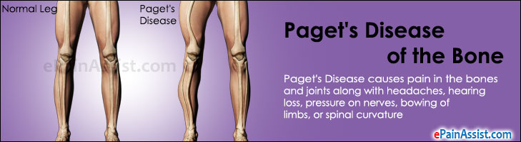 Paget's Disease of the Bone