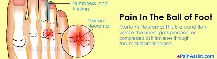 Pain In The Ball of Foot or Metatarsalgia