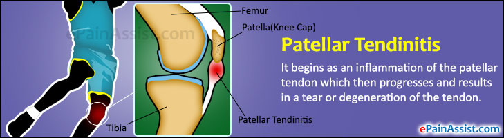 Patellar Tendinitis or Jumper's Knee