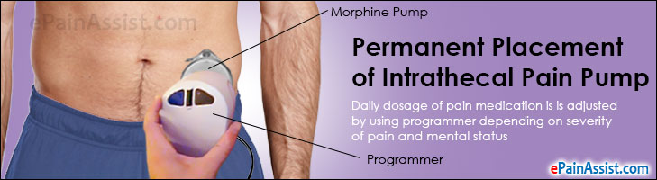Permanent Placement of Intrathecal Pain Pump and Pump Types