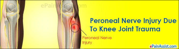 Peroneal Nerve Injury Due To Knee Joint Trauma
