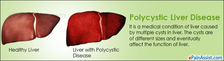 Polycystic Liver Disease (PLD)