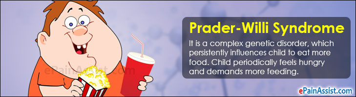 a look at the causes symptoms and treatment of prader willi syndrome Medical professionals will often carry out this check if they identify someone who  is displaying the symptoms of prader-willi syndrome.