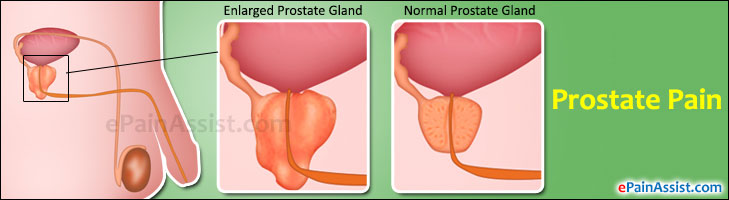 prostate pain classification types etiology risk factors signs rh epainassist com