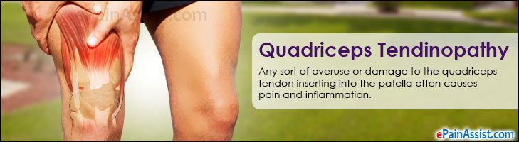 Quadriceps Tendinopathy