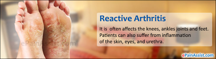 Reactive Arthritis: Causes, Risk Factors, Investigations, Treatment ...