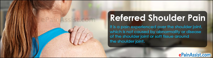 Referred Shoulder Pain