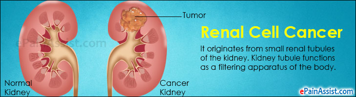 Renal Cell Cancer or Hypernephroma