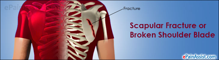 Scapular Fracture or Broken Shoulder Blade